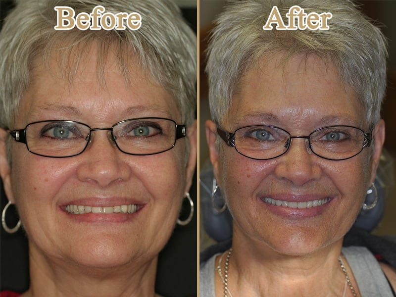 Implants All-On-4 on Huntingdon Valley Dental Arts