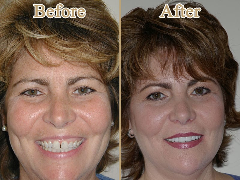 Porcelain Veneers image on Huntingdon Valley Dental Arts