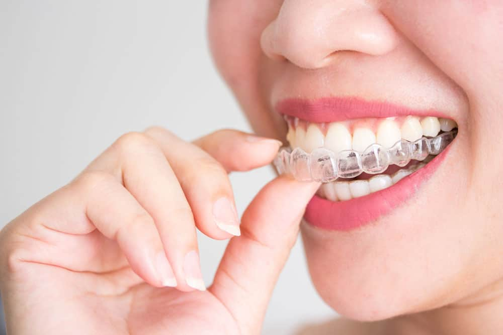 Tips for Daily Life with Invisalign